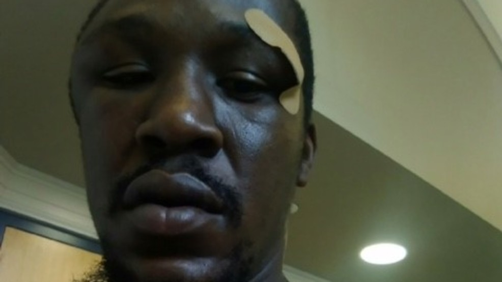 Johnnie Rush was beaten chocked and tasered after jaywalking in North Carolina
