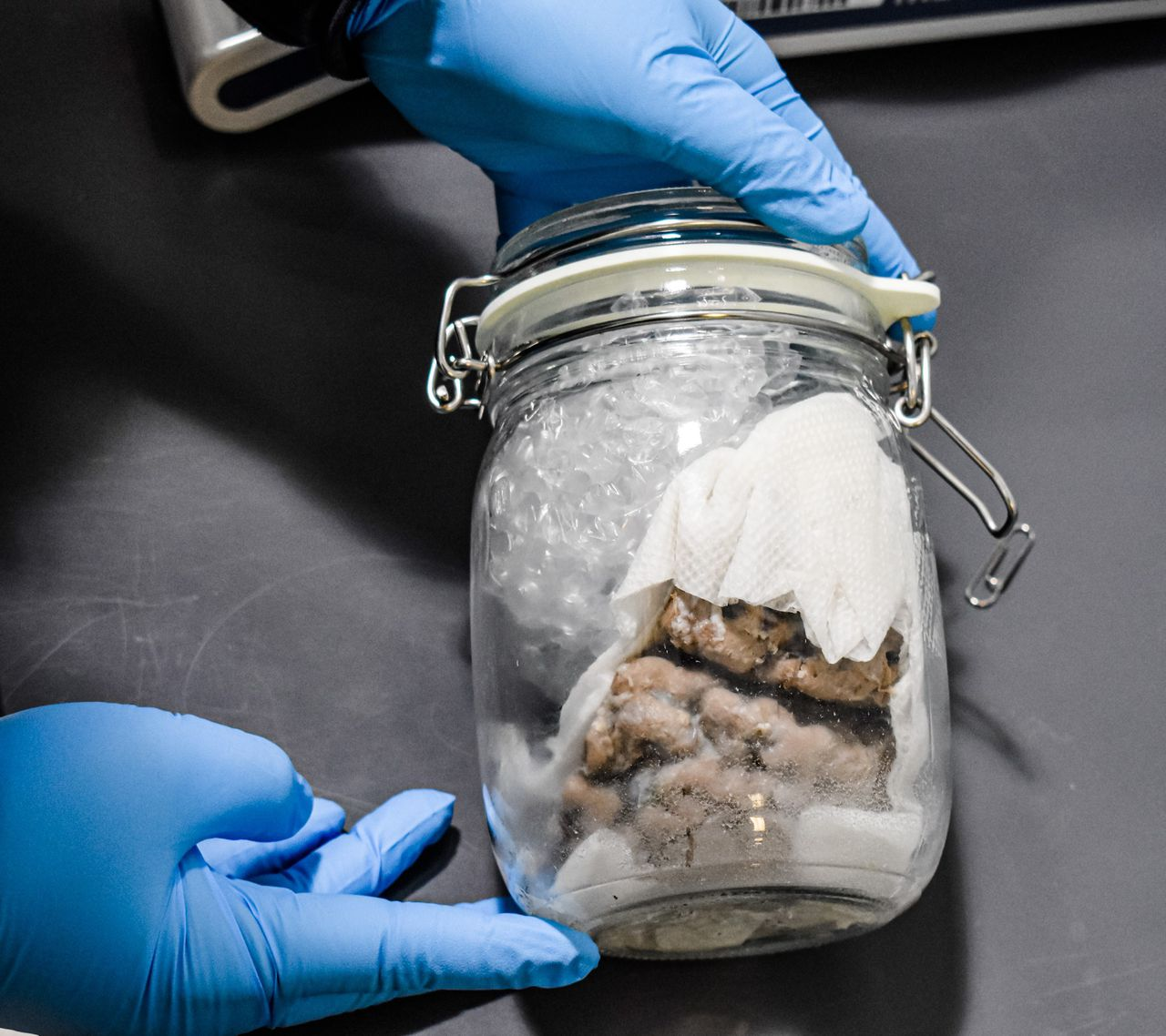 Human brain mailed from Toronto to Wisconsin seized at USA  border